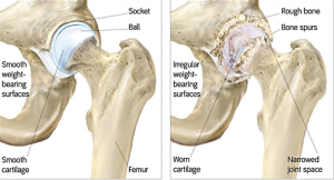 Hip Injections Workers Compensation