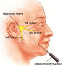 Trigeminal Neuralgia Radiofrequency