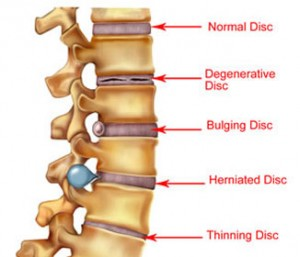 This picture shows how a bulging disc looks vs a herniated disc.