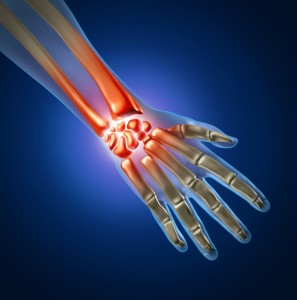 hand wrist carpal tunnel pain photo