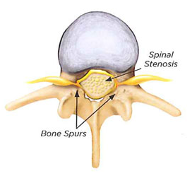 spinal stenosis1