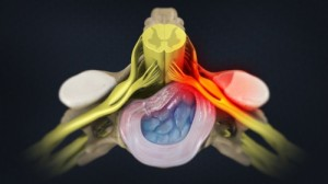 Phoenix Workers compensation pain doctor