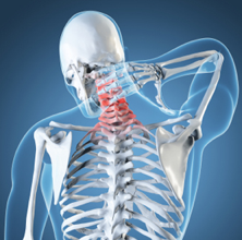 Workers Comp Doctor for Neck Pain