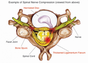 Herniated Disc in the Neck