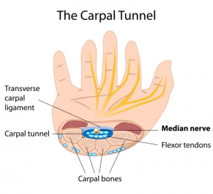 Carpal Tunnel doctor Phoenix