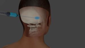 Occipital blocks
