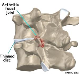 facet arthritis