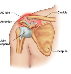 Shoulder Doctor for Work Comp