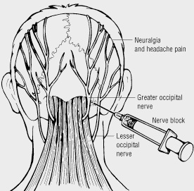 Occipital Nerve Block