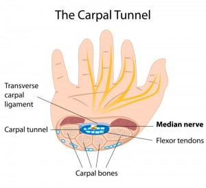 Carpal Tunnel doctor Phoenix